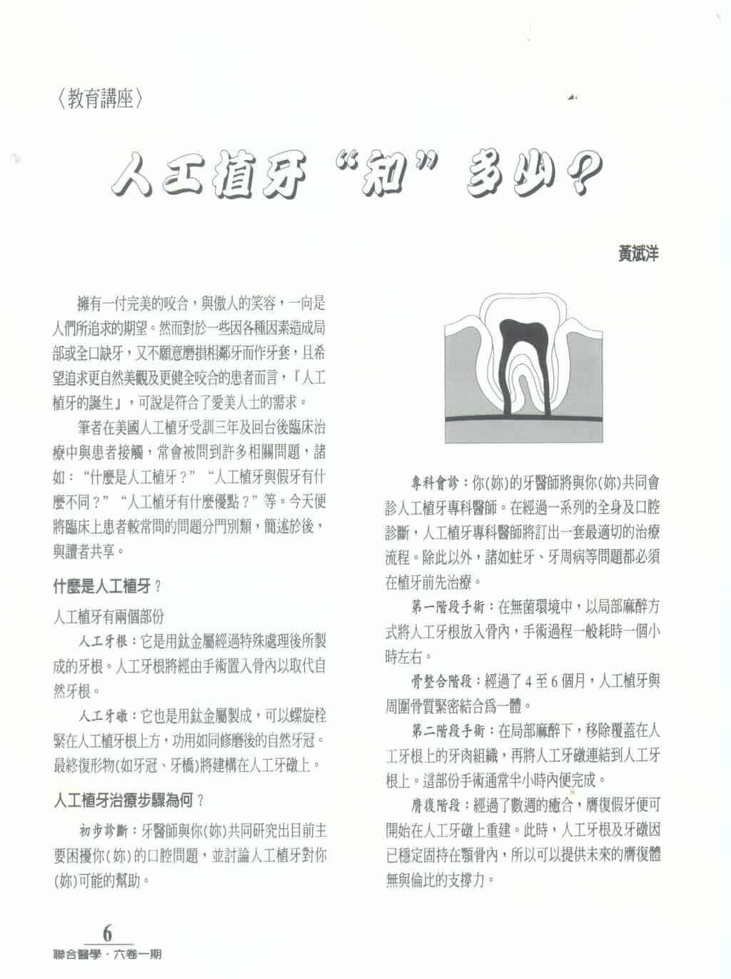 聯合醫學通訊-人工植牙知多少-柏登牙醫人工植牙-2
