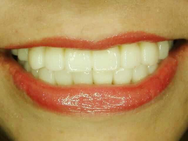 英花感謝專業有耐心的柏登牙醫,再造微笑美齒3