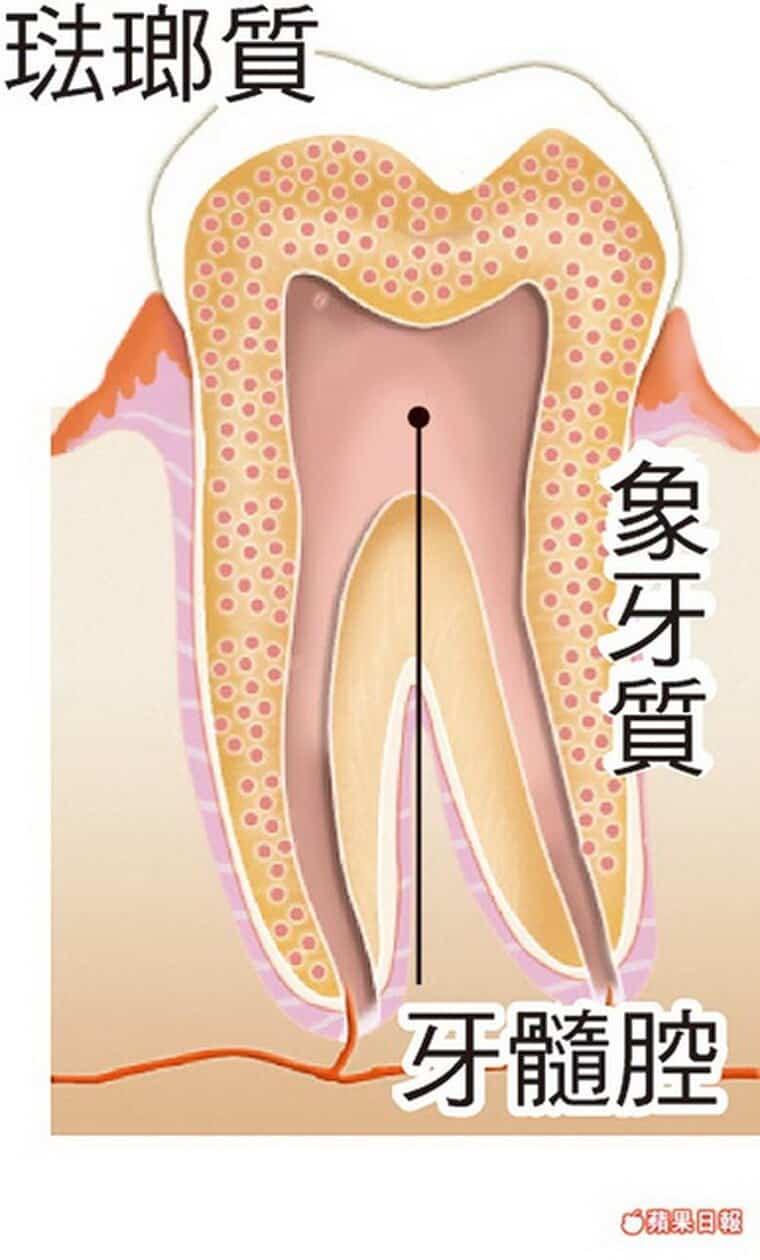 錯誤偏方變爛牙-柏登牙醫-牙齒美白衛教2