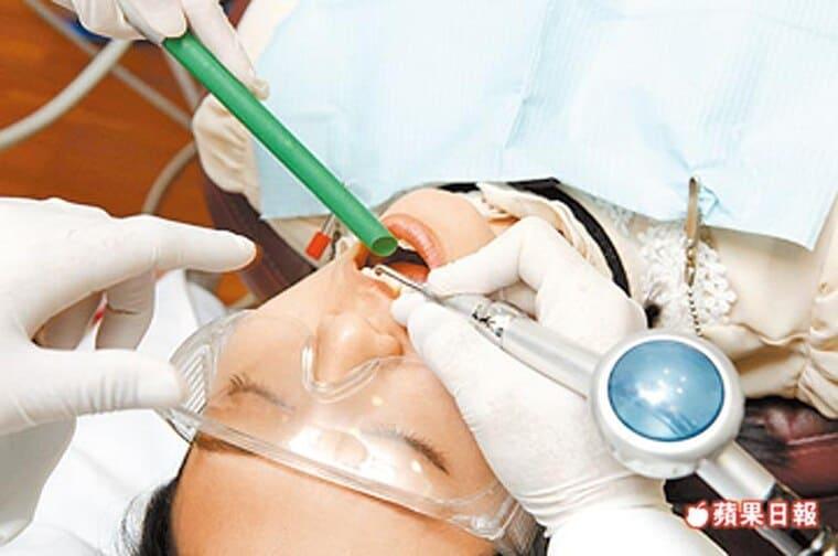 長期吃中藥粉-牙齒遭染黃蘋果日報-柏登牙醫牙齒美白秘笈-3