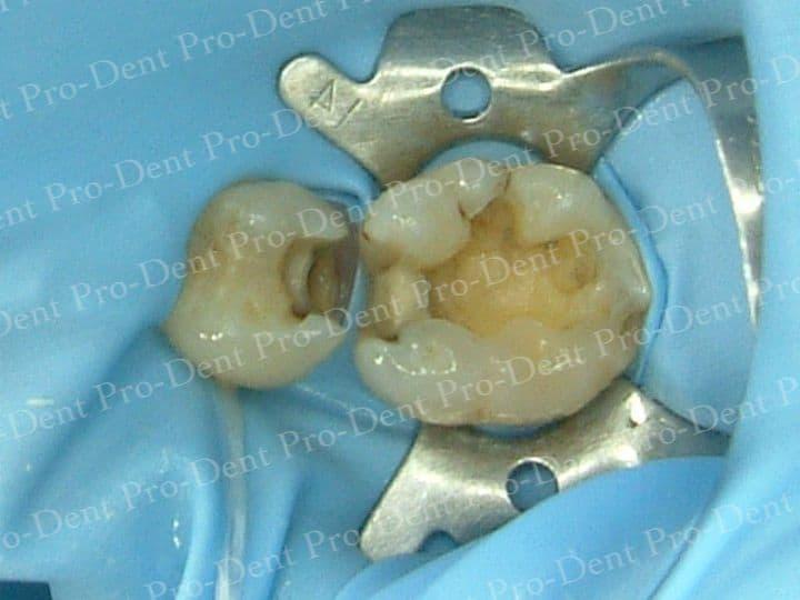 防護拆銀粉-柏登牙醫案例分享-案例一1-结果-1