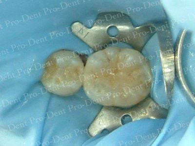 防護拆銀粉-柏登牙醫案例分享-案例一2-结果