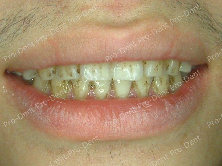 口腔SPA-柏登牙醫案例分享-案例四1-治療前