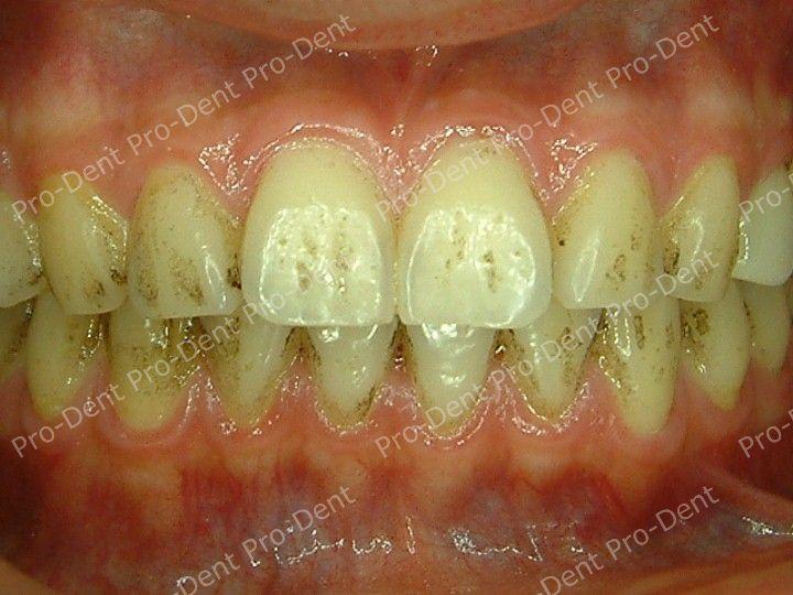 口腔SPA-柏登牙醫案例分享-案例四2-治療前