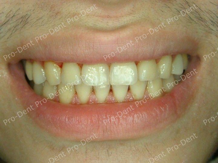 口腔SPA-柏登牙醫案例分享-案例四3-治療後