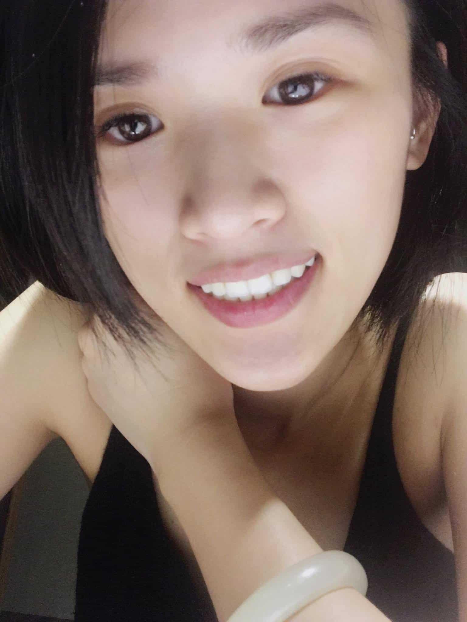 Fion-Chiang的愛美無極限-整理牙齒門面紀錄牙齒微笑縣、牙齒美白、全瓷冠的牙齒