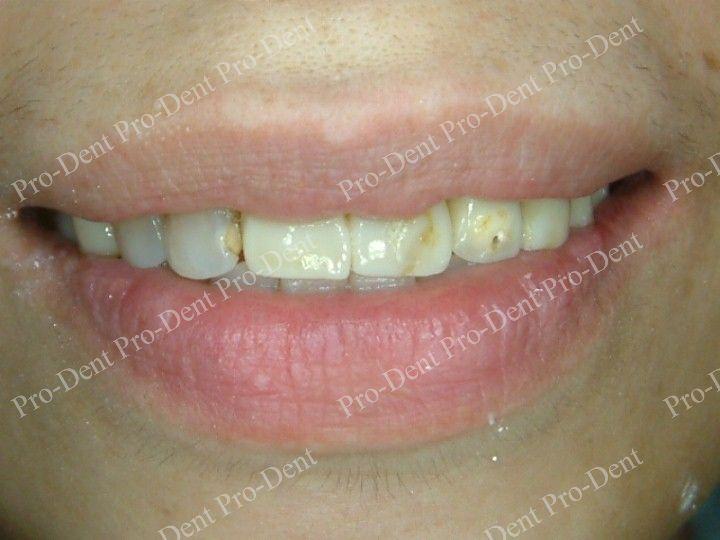 精密瓷牙案例分享四1-治療前