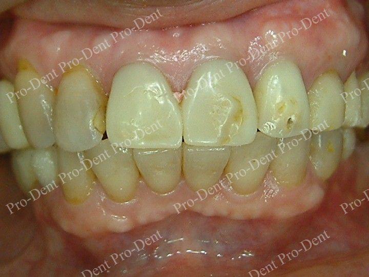 精密瓷牙案例分享四2-治療前