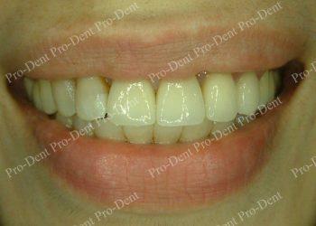精密瓷牙案例分享-治療後