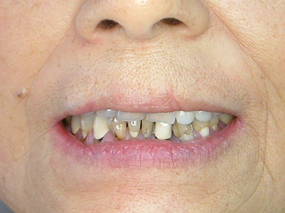 n精密瓷冠牙橋-前-柏登牙醫