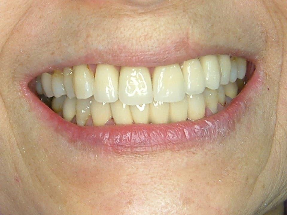 n精密瓷冠牙橋-後-柏登牙醫