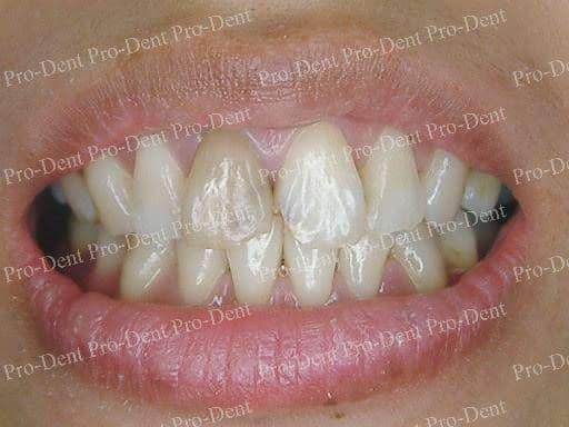 口腔SPA-案例分享-治療前
